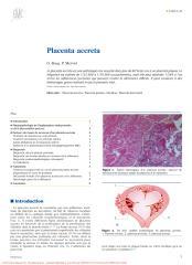 Placenta accreta (1).pdf